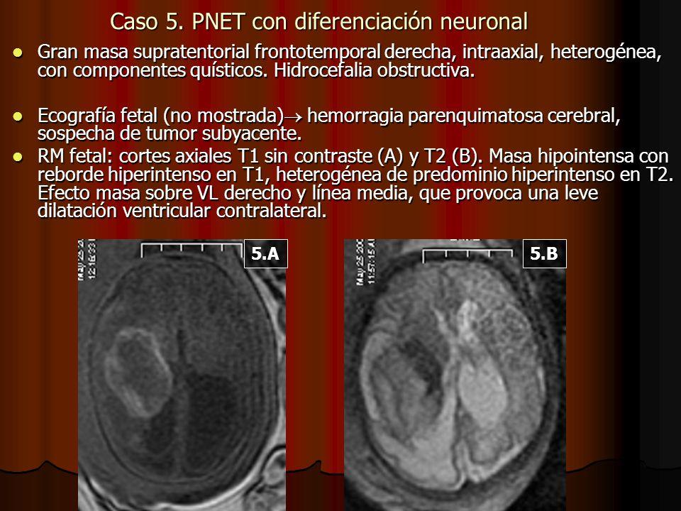 Caso 5. PNET con diferenciación neuronal Gran masa supratentorial frontotemporal derecha, intraaxial, heterogénea, con componentes quísticos. Hidrocef