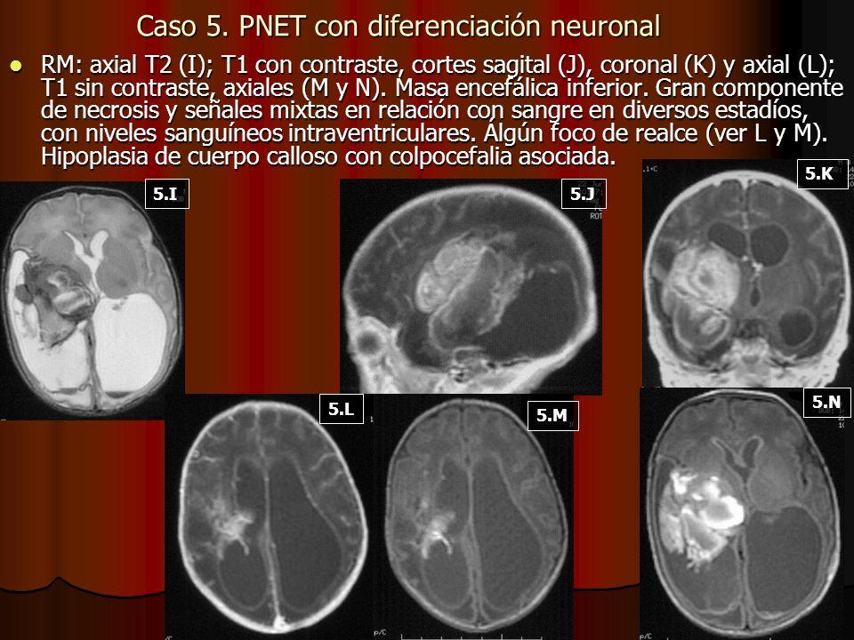 Caso 5. PNET con diferenciación neuronal RM: axial T2 (I); T1 con contraste, cortes sagital (J), coronal (K) y axial (L); T1 sin contraste, axiales (M