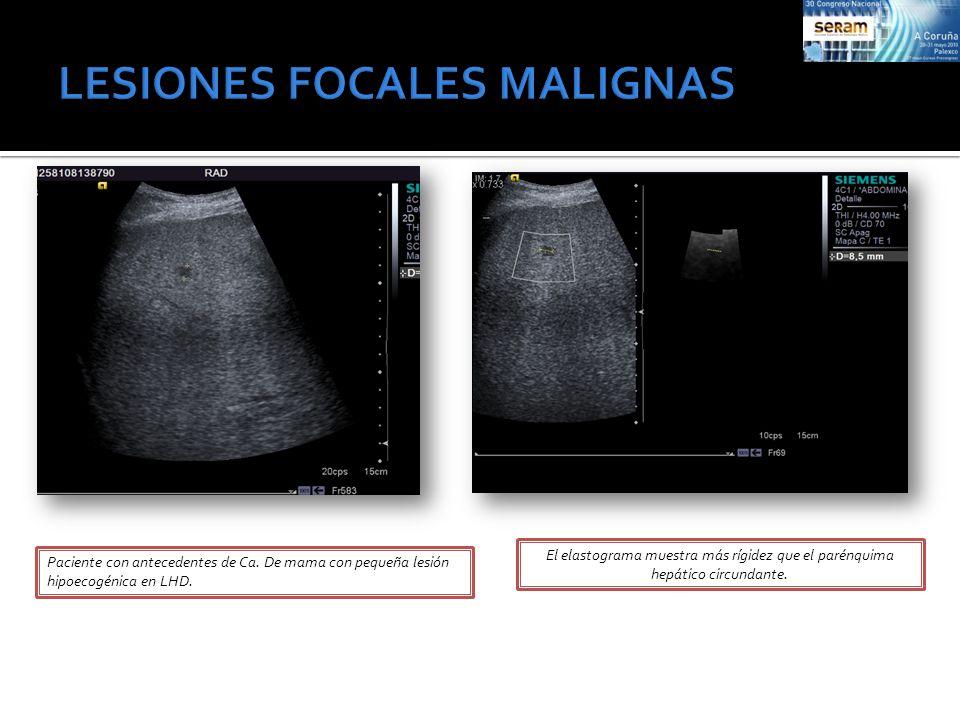 Paciente con antecedentes de Ca. De mama con pequeña lesión hipoecogénica en LHD. El elastograma muestra más rígidez que el parénquima hepático circun
