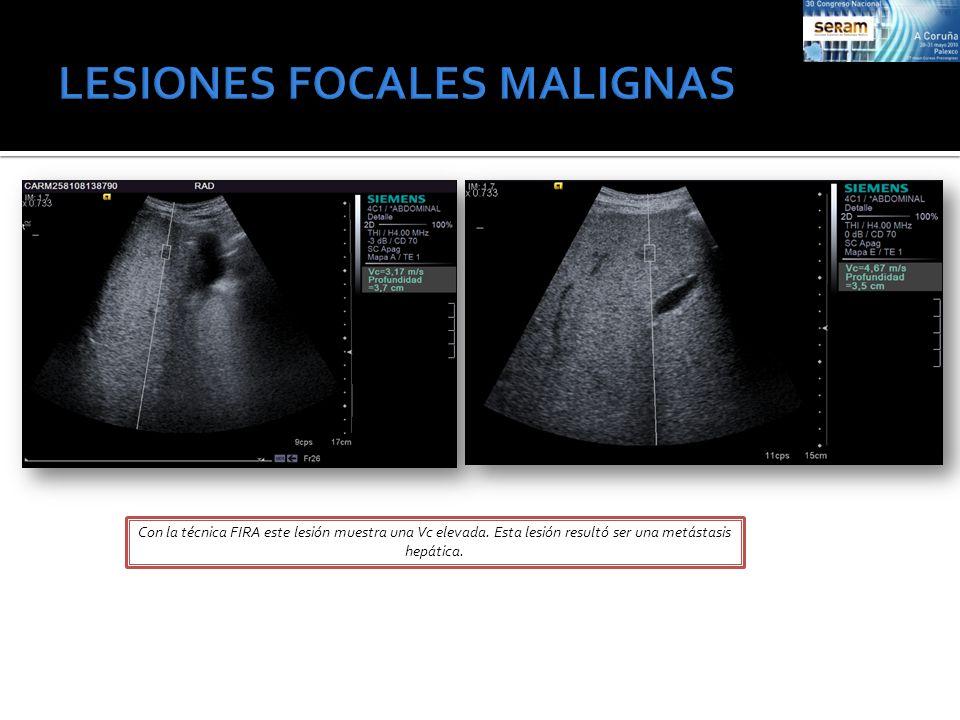 Con la técnica FIRA este lesión muestra una Vc elevada. Esta lesión resultó ser una metástasis hepática.