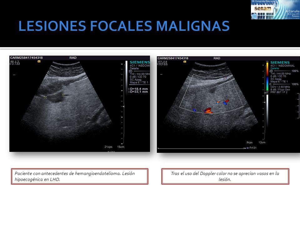 Paciente con antecedentes de hemangioendotelioma. Lesión hipoecogénica en LHD. Tras el uso del Doppler color no se aprecian vasos en la lesión.