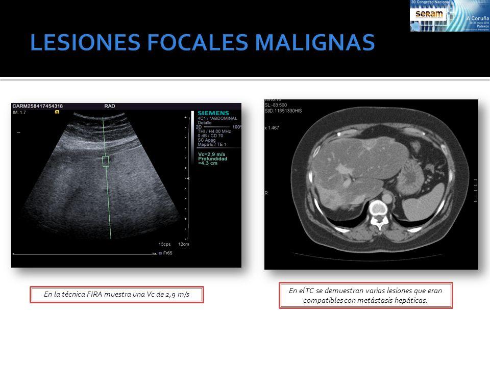 En la técnica FIRA muestra una Vc de 2,9 m/s En el TC se demuestran varias lesiones que eran compatibles con metástasis hepáticas.