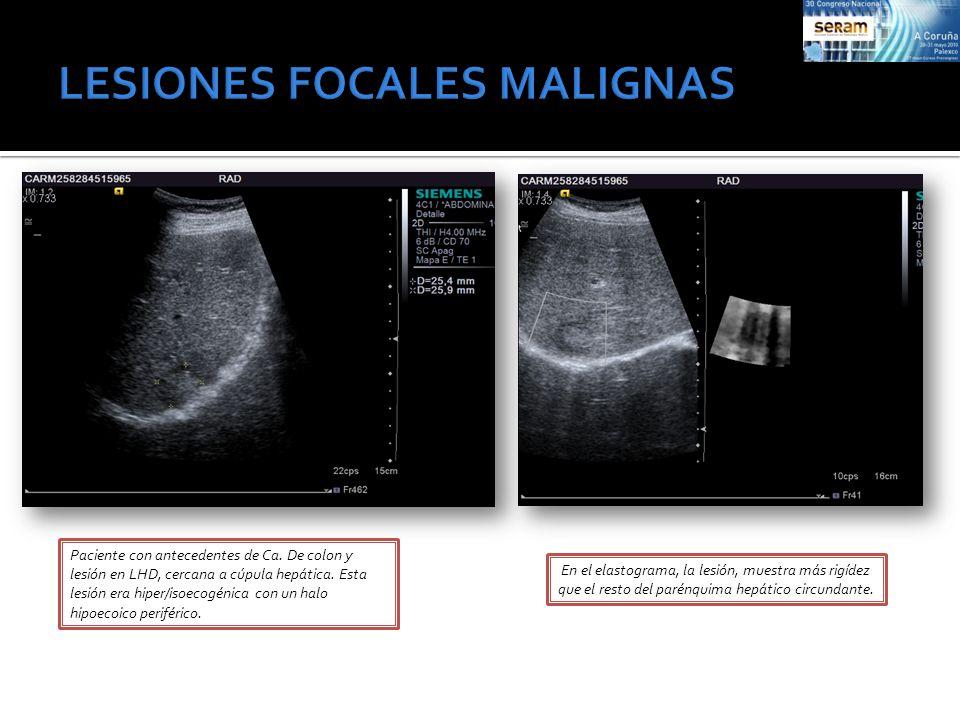 Paciente con antecedentes de Ca. De colon y lesión en LHD, cercana a cúpula hepática. Esta lesión era hiper/isoecogénica con un halo hipoecoico perifé