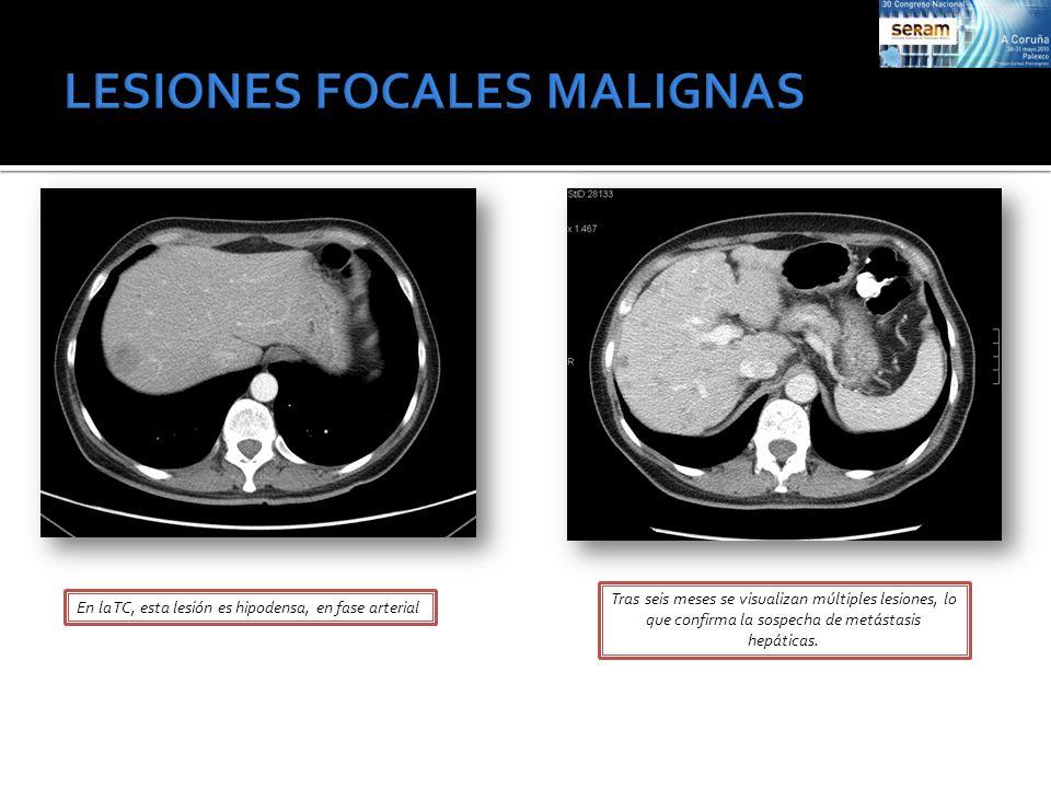 En la TC, esta lesión es hipodensa, en fase arterial Tras seis meses se visualizan múltiples lesiones, lo que confirma la sospecha de metástasis hepát