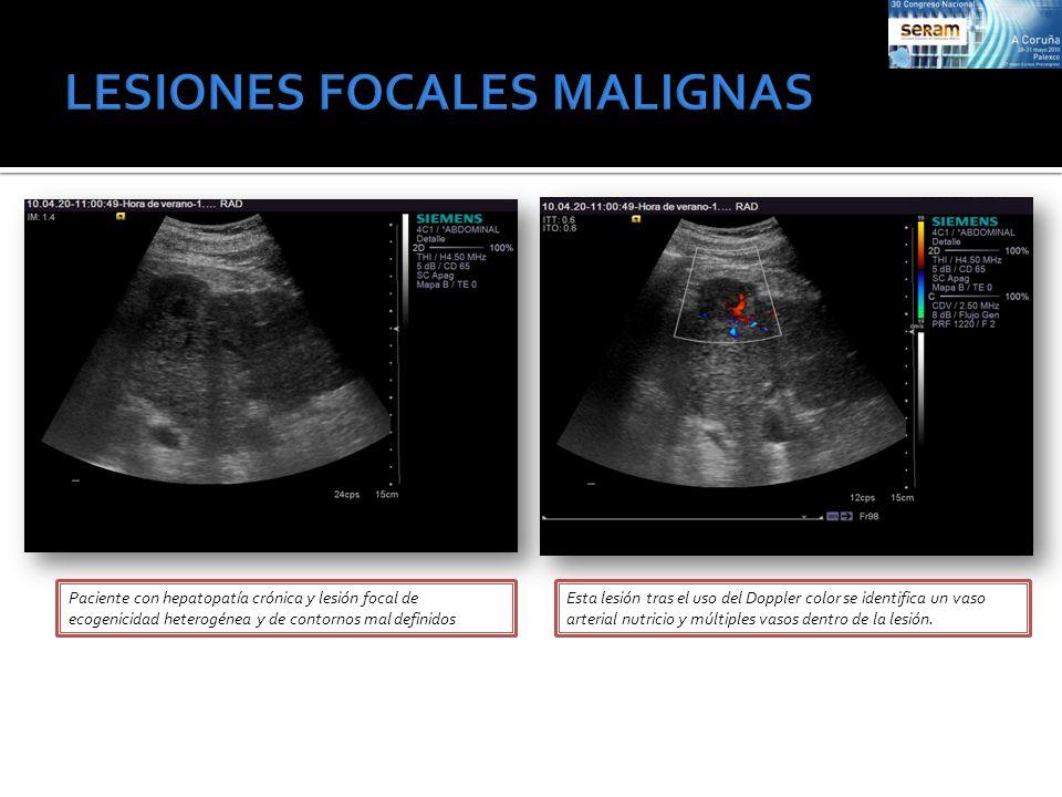 Paciente con hepatopatía crónica y lesión focal de ecogenicidad heterogénea y de contornos mal definidos Esta lesión tras el uso del Doppler color se
