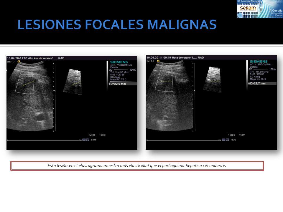 Paciente con antecedentes de Ca.De colon y lesión en LHD, cercana a cúpula hepática.