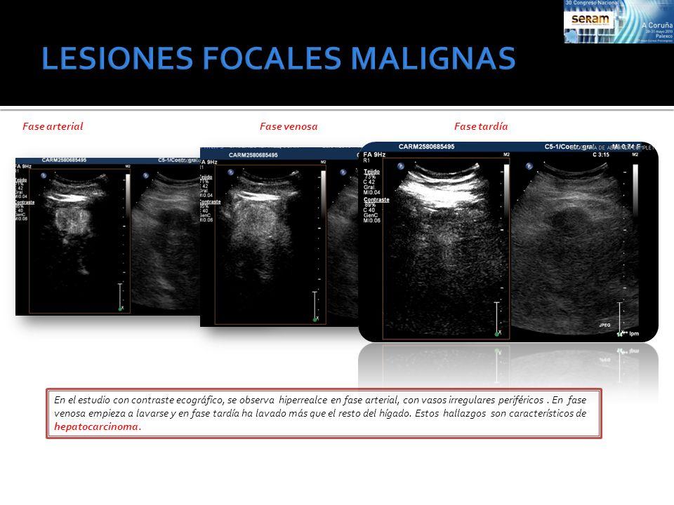Fase arterialFase venosaFase tardía En el estudio con contraste ecográfico, se observa hiperrealce en fase arterial, con vasos irregulares periféricos