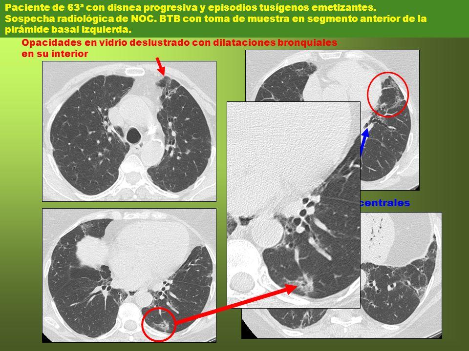 Paciente de 63ª con disnea progresiva y episodios tusígenos emetizantes. Sospecha radiológica de NOC. BTB con toma de muestra en segmento anterior de