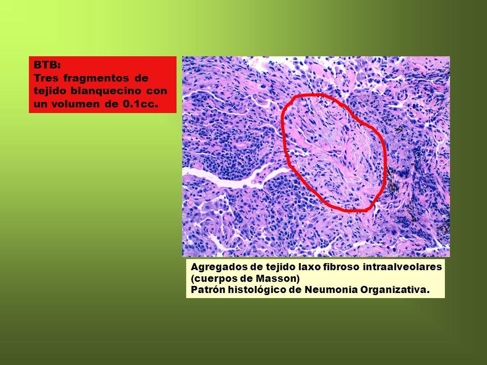 Agregados de tejido laxo fibroso intraalveolares (cuerpos de Masson) Patrón histológico de Neumonia Organizativa. BTB: Tres fragmentos de tejido blanq