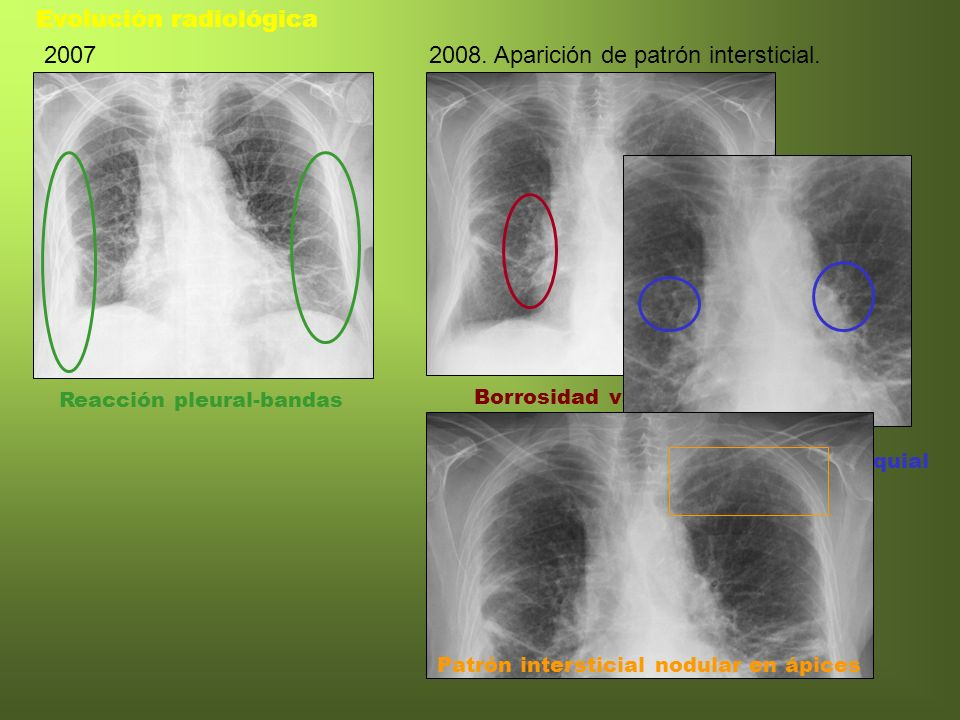 Reacción pleural-bandas Evolución radiológica 2007 Borrosidad vascular 2008. Aparición de patrón intersticial. Engrosamiento pared bronquial Patrón in