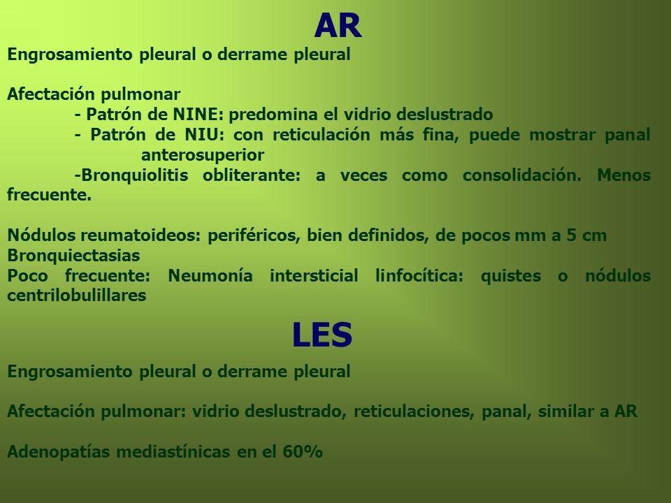 AR Engrosamiento pleural o derrame pleural Afectación pulmonar - Patrón de NINE: predomina el vidrio deslustrado - Patrón de NIU: con reticulación más