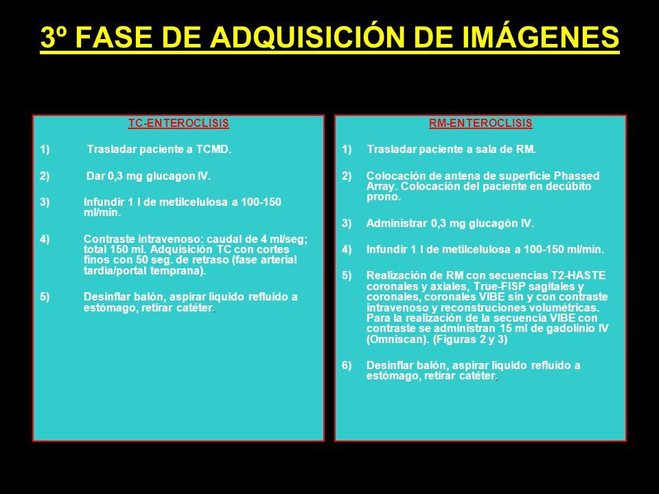 3º FASE DE ADQUISICIÓN DE IMÁGENES TC-ENTEROCLISIS 1) Trasladar paciente a TCMD. 2) Dar 0,3 mg glucagon IV. 3)Infundir 1 l de metilcelulosa a 100-150