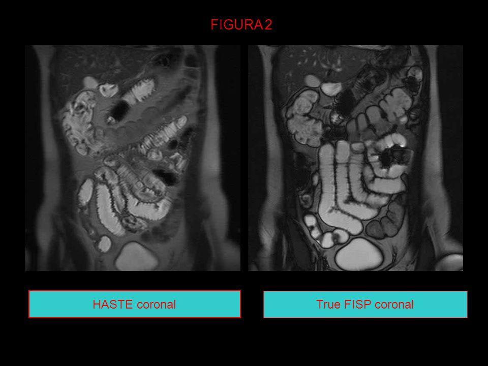 HASTE coronal True FISP coronal FIGURA 2