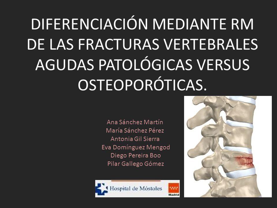 REVISIÓN DEL TEMA La extensión a elementos posteriores vertebrales indica afectación tumoral (Especificidad (E) y sensibilidad (S) del 94%), observándose en el caso de fracturas osteoporóticas únicamente afectación del cuerpo vertebral con respeto de los mismos.