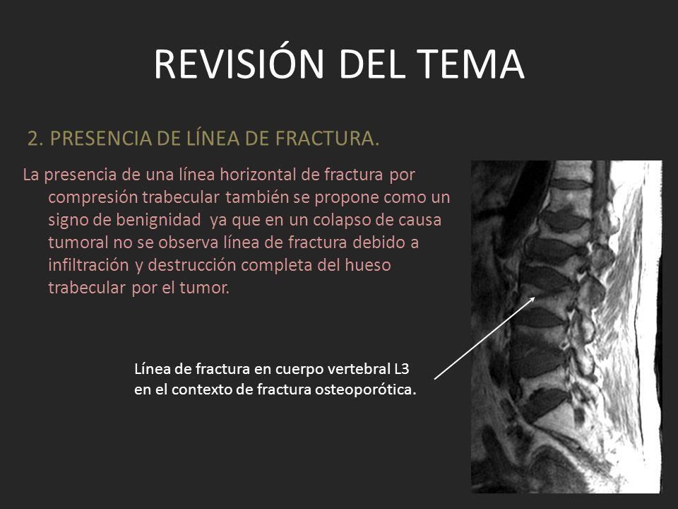 REVISIÓN DEL TEMA La presencia de una línea horizontal de fractura por compresión trabecular también se propone como un signo de benignidad ya que en