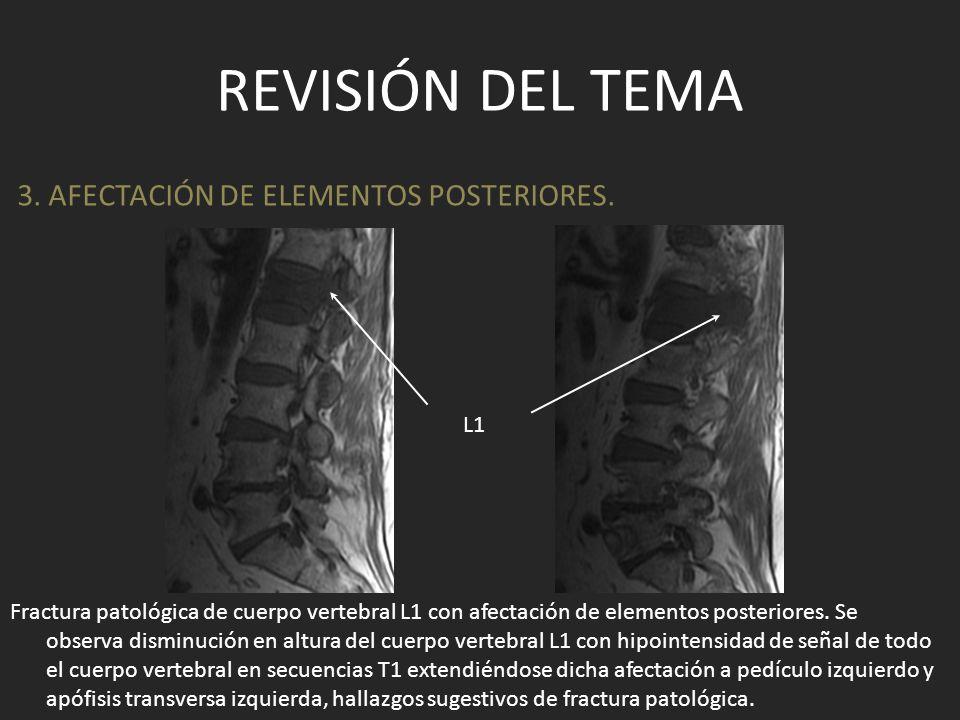 REVISIÓN DEL TEMA Fractura patológica de cuerpo vertebral L1 con afectación de elementos posteriores. Se observa disminución en altura del cuerpo vert