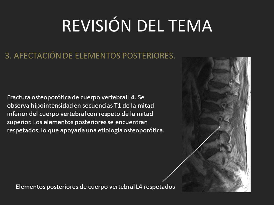 REVISIÓN DEL TEMA 3. AFECTACIÓN DE ELEMENTOS POSTERIORES. Fractura osteoporótica de cuerpo vertebral L4. Se observa hipointensidad en secuencias T1 de