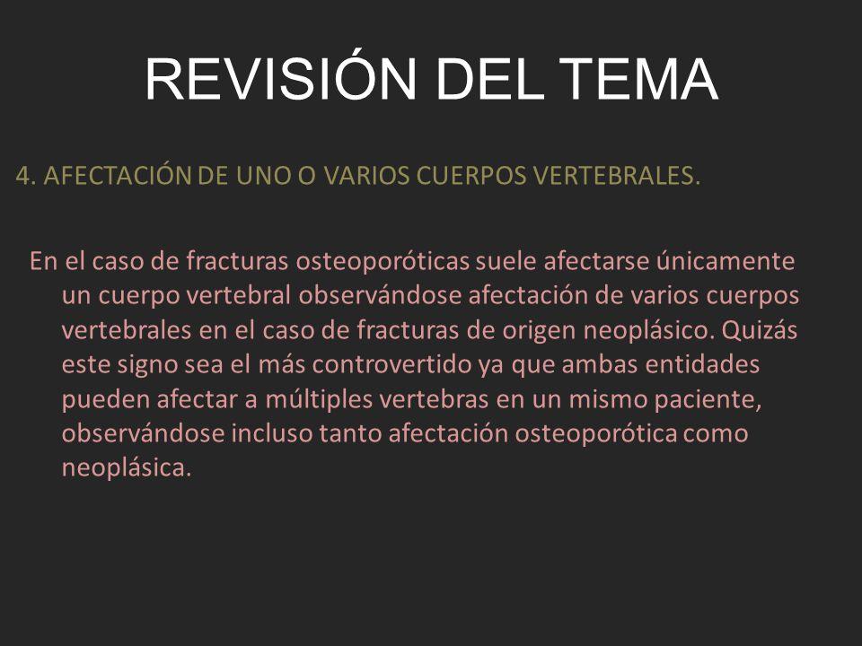 REVISIÓN DEL TEMA En el caso de fracturas osteoporóticas suele afectarse únicamente un cuerpo vertebral observándose afectación de varios cuerpos vert