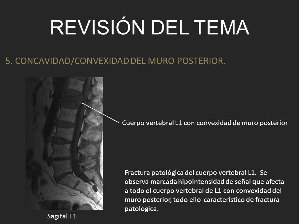 REVISIÓN DEL TEMA 5. CONCAVIDAD/CONVEXIDAD DEL MURO POSTERIOR. Fractura patológica del cuerpo vertebral L1. Se observa marcada hipointensidad de señal