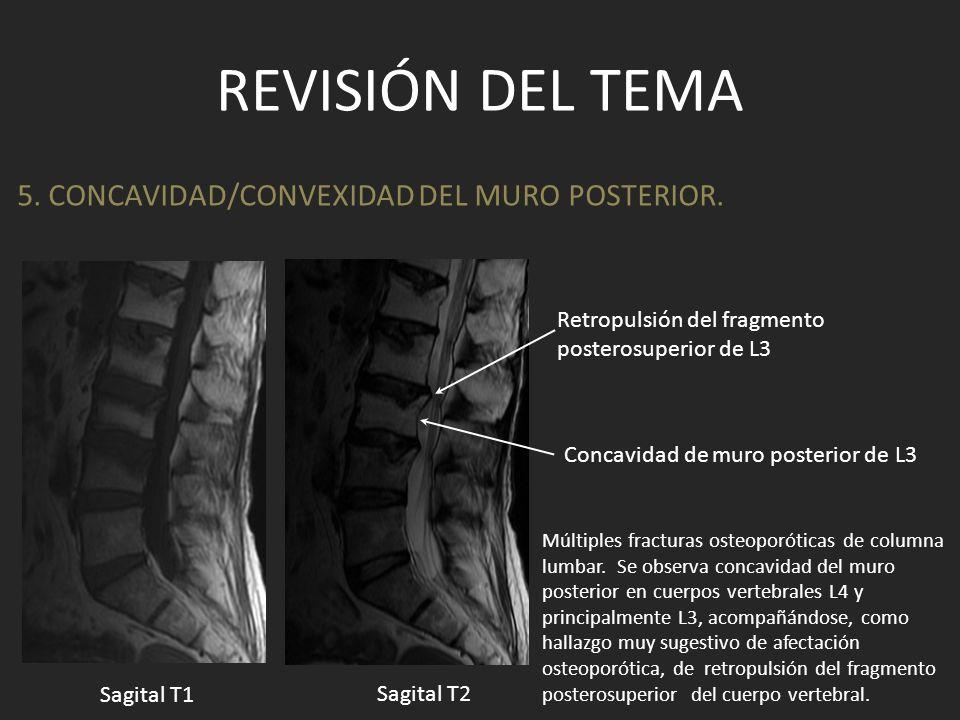 REVISIÓN DEL TEMA 5. CONCAVIDAD/CONVEXIDAD DEL MURO POSTERIOR. Múltiples fracturas osteoporóticas de columna lumbar. Se observa concavidad del muro po
