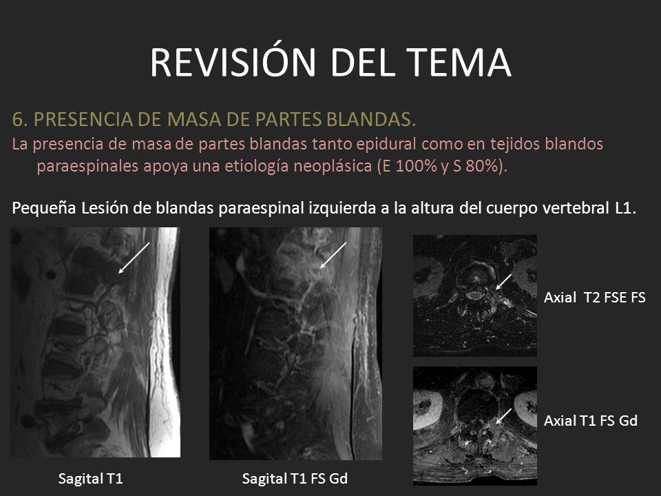 REVISIÓN DEL TEMA 6. PRESENCIA DE MASA DE PARTES BLANDAS. Pequeña Lesión de blandas paraespinal izquierda a la altura del cuerpo vertebral L1. Sagital