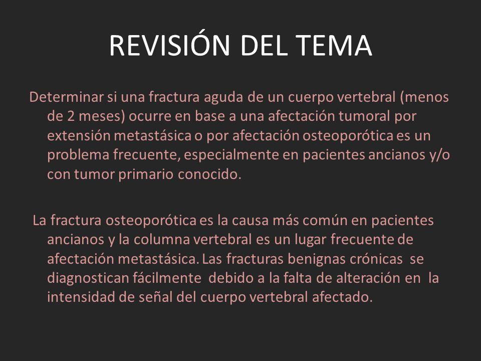 REVISIÓN DEL TEMA Determinar si una fractura aguda de un cuerpo vertebral (menos de 2 meses) ocurre en base a una afectación tumoral por extensión met