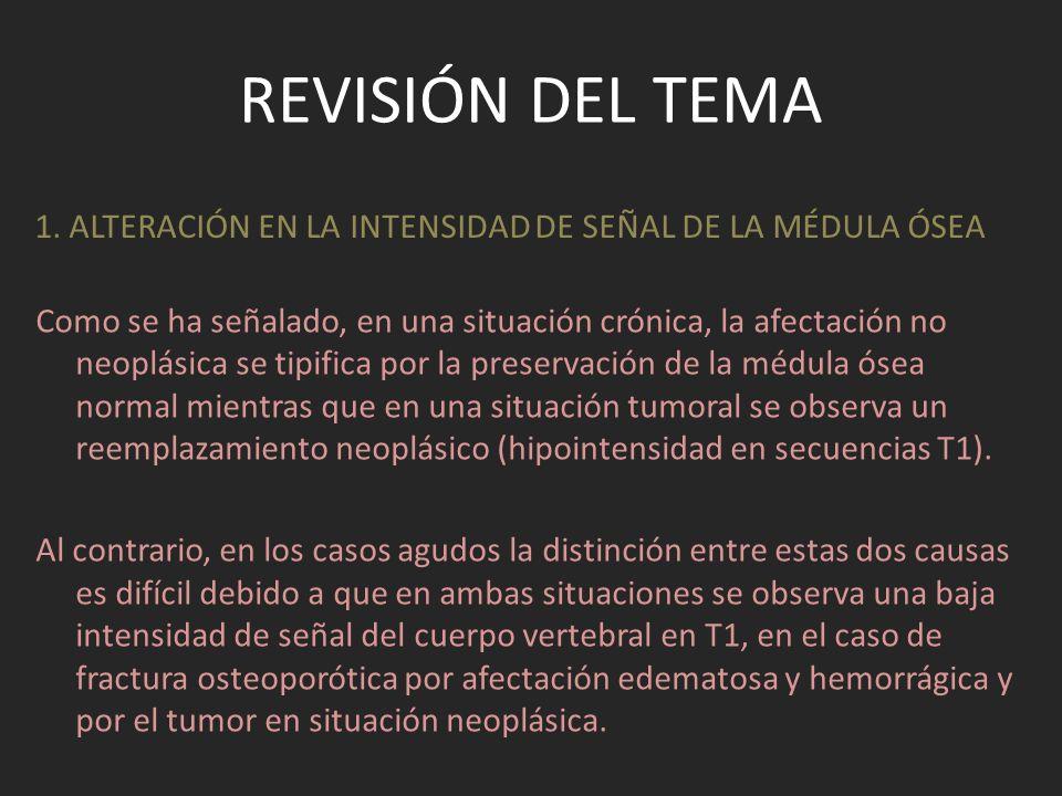 REVISIÓN DEL TEMA 5.CONCAVIDAD/CONVEXIDAD DEL MURO POSTERIOR.