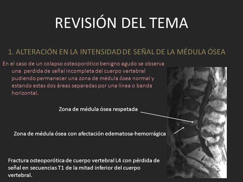 REVISIÓN DEL TEMA En el caso de un colapso vertebral por proceso neoplásico la alteración de la señal afecta a todo el cuerpo vertebral debido a la infiltración tumoral.