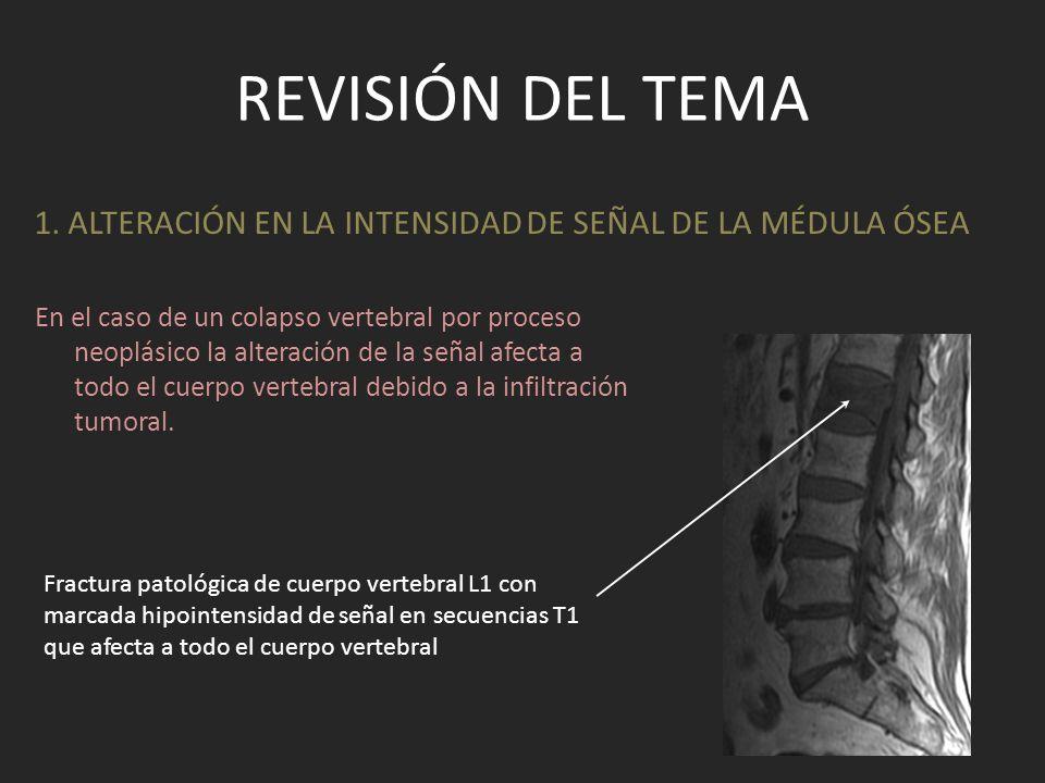 REVISIÓN DEL TEMA En STIR la presencia de áreas focales, lineales o triangulares de hiperintensidad de señal (iso intenso con LCR) adyacente a una fractura vertebral (signo del líquido ) puede considerarse un signo adicional de fractura osteoporótica aguda,no siendo frecuente en el caso de afectación metastásica.