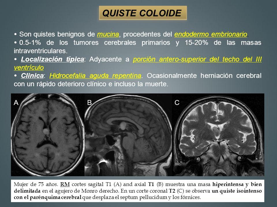 NEUROCITOMA CENTRAL 0,25% -0,5% de todos los tumores intracraneales.