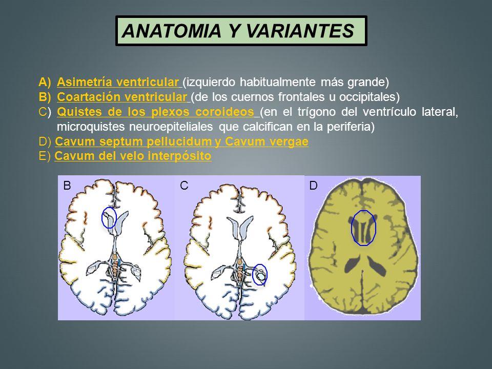 ANATOMIA Y VARIANTES A)Asimetría ventricular (izquierdo habitualmente más grande) B)Coartación ventricular (de los cuernos frontales u occipitales) C)