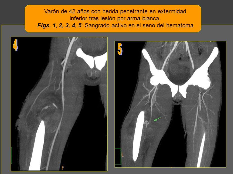 Varón de 42 años con herida penetrante en extermidad inferior tras lesión por arma blanca. Figs. 1, 2, 3, 4, 5: Sangrado activo en el seno del hematom