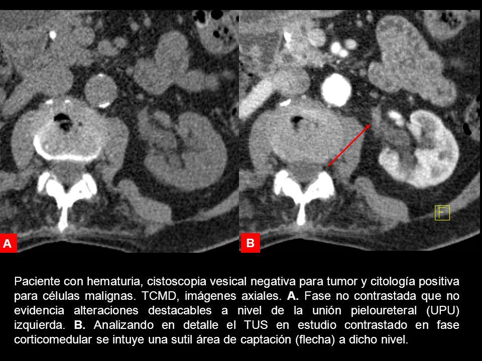 Paciente con hematuria, cistoscopia vesical negativa para tumor y citología positiva para células malignas.