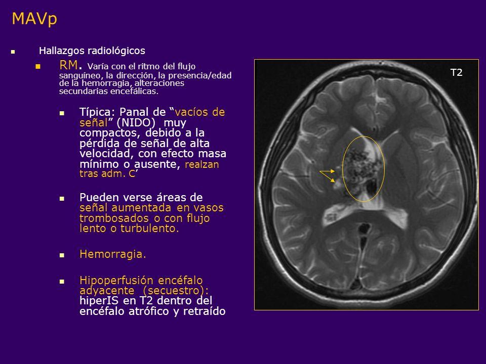 Hallazgos radiológicos RM. Varía con el ritmo del flujo sanguíneo, la dirección, la presencia/edad de la hemorragia, alteraciones secundarias encefáli