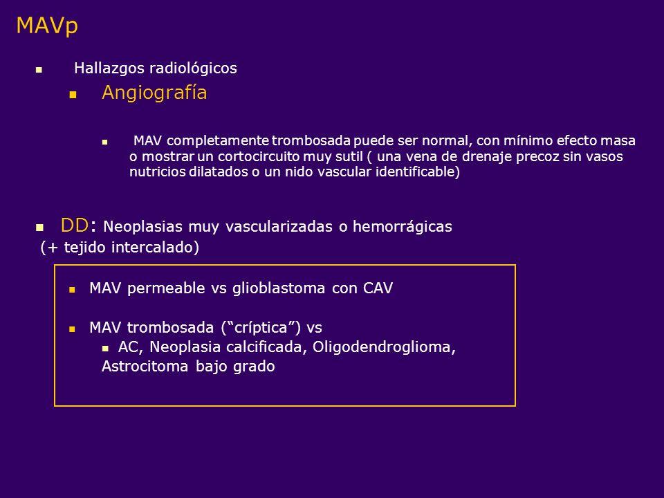 DD: Neoplasias muy vascularizadas o hemorrágicas (+ tejido intercalado) MAV permeable vs glioblastoma con CAV MAV trombosada (críptica) vs AC, Neoplas