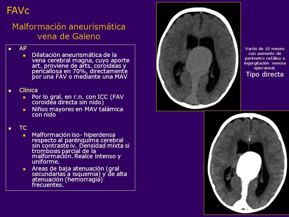Malformación aneurismática vena de Galeno AP Dilatación aneurismática de la vena cerebral magna, cuyo aporte art. proviene de arts. coroideas y perica