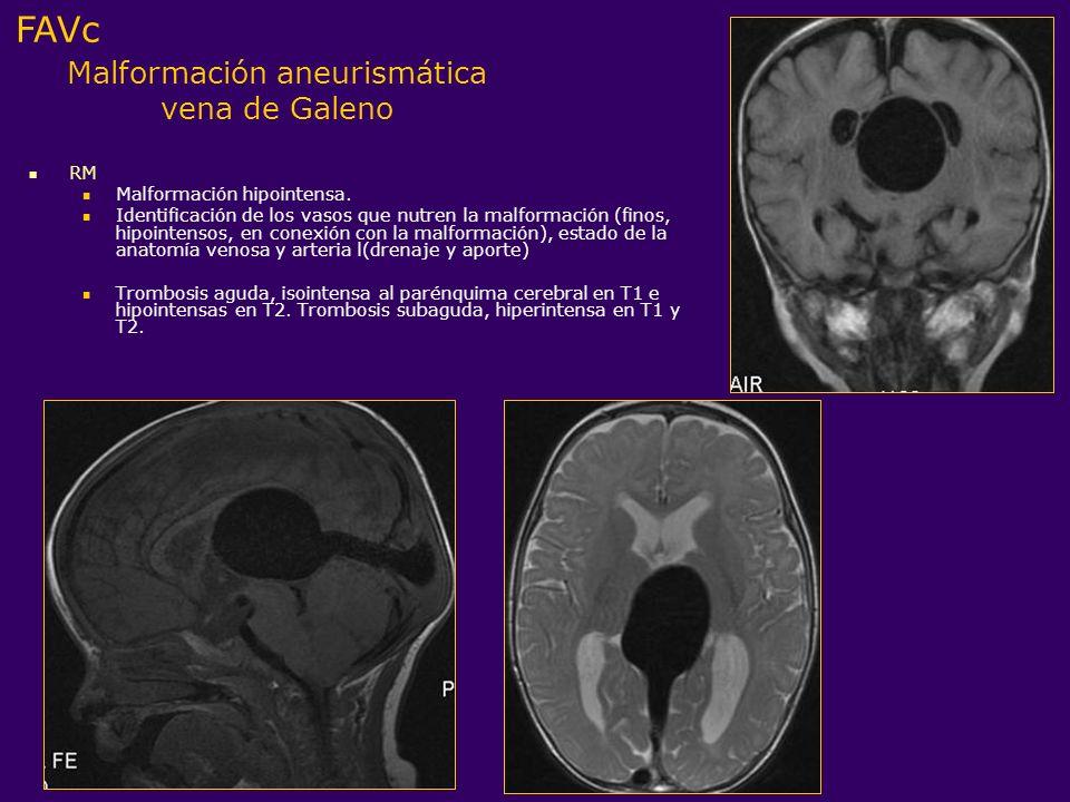 Malformación aneurismática vena de Galeno RM Malformación hipointensa. Identificación de los vasos que nutren la malformación (finos, hipointensos, en