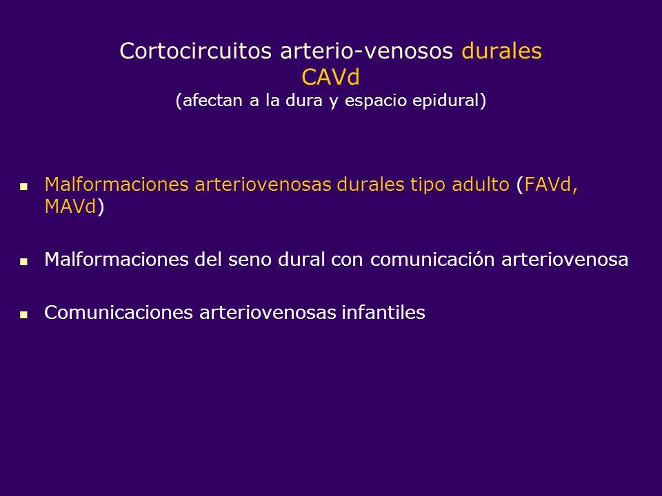 Cortocircuitos arterio-venosos durales CAVd (afectan a la dura y espacio epidural) Malformaciones arteriovenosas durales tipo adulto (FAVd, MAVd) Malf