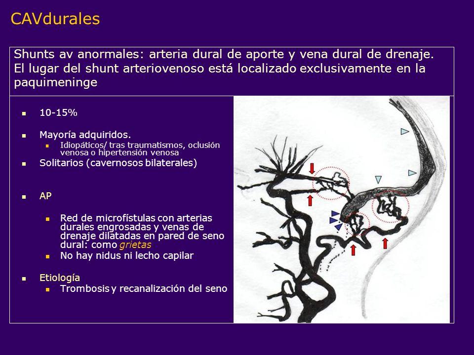 10-15% Mayoría adquiridos. Idiopáticos/ tras traumatismos, oclusión venosa o hipertensión venosa Solitarios (cavernosos bilaterales) AP Red de microfí