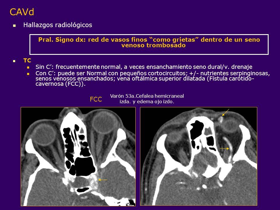 Hallazgos radiológicos Pral. Signo dx: red de vasos finos como grietas dentro de un seno venoso trombosado TC Sin C: frecuentemente normal, a veces en