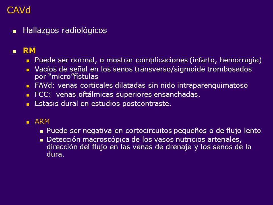 Hallazgos radiológicos RM Puede ser normal, o mostrar complicaciones (infarto, hemorragia) Vacíos de señal en los senos transverso/sigmoide trombosado