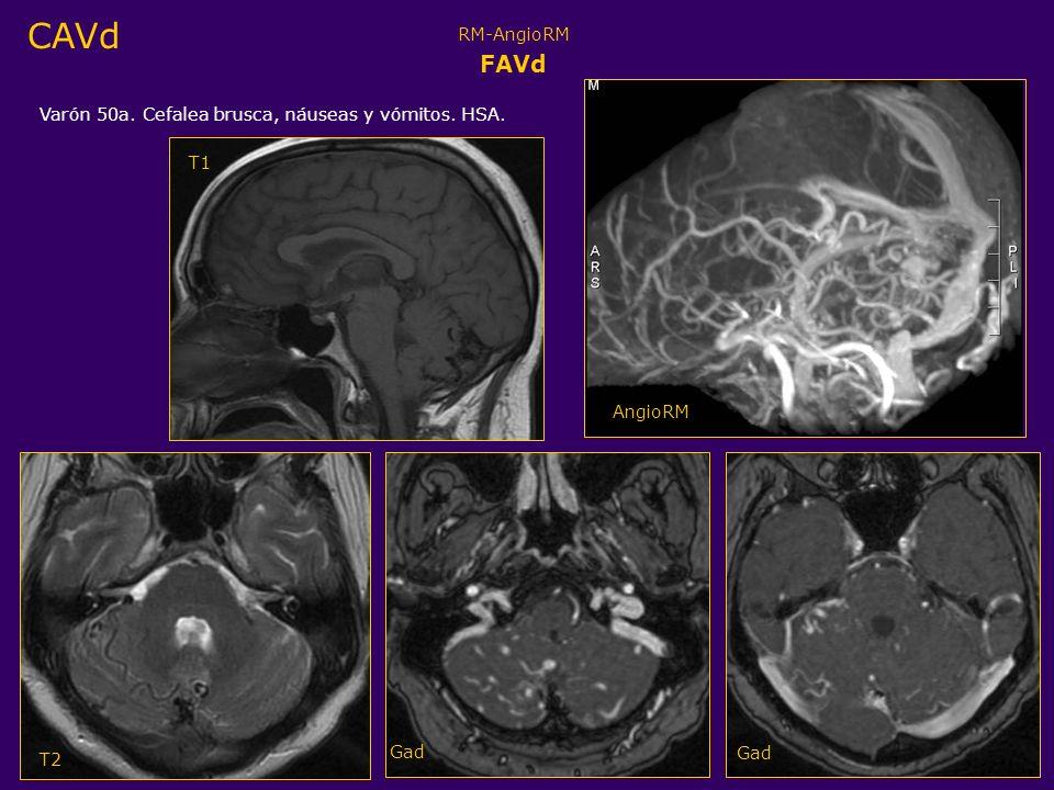 CAVd FAVd RM-AngioRM Varón 50a. Cefalea brusca, náuseas y vómitos. HSA. T1 T2 Gad AngioRM