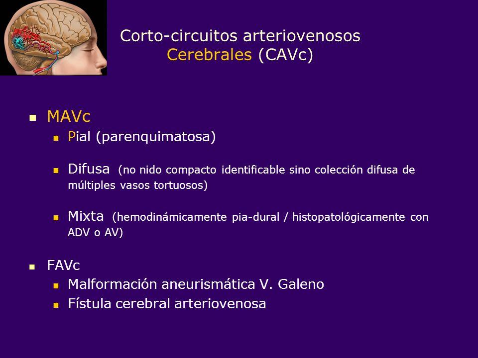 DD MAV pial-dural mixta (rara) En CAVd grandes de fosa posterior.