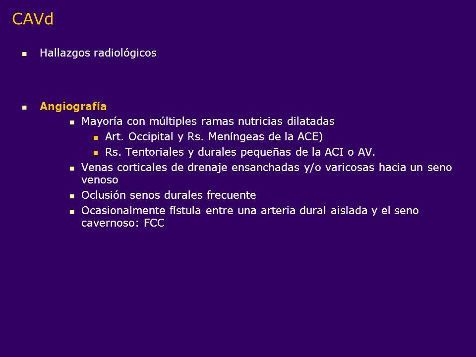 Hallazgos radiológicos Angiografía Mayoría con múltiples ramas nutricias dilatadas Art. Occipital y Rs. Meníngeas de la ACE) Rs. Tentoriales y durales