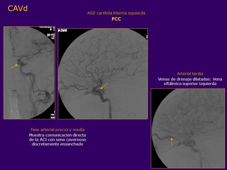 ASD carótida interna izquierda FCC Arterial tardía Venas de drenaje dilatadas: Vena oftálmica superior izquierda Fase arterial precoz y media Muestra