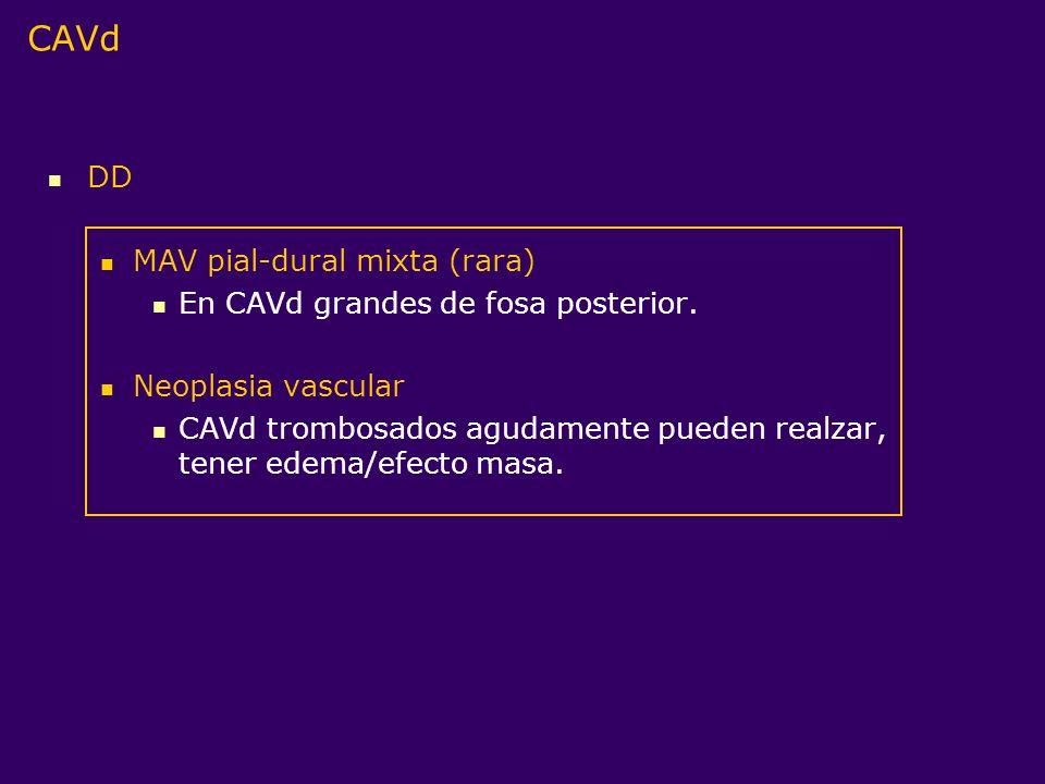 DD MAV pial-dural mixta (rara) En CAVd grandes de fosa posterior. Neoplasia vascular CAVd trombosados agudamente pueden realzar, tener edema/efecto ma
