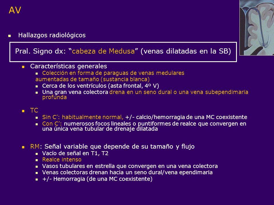 AV Hallazgos radiológicos Pral. Signo dx: cabeza de Medusa (venas dilatadas en la SB) Características generales Colección en forma de paraguas de vena