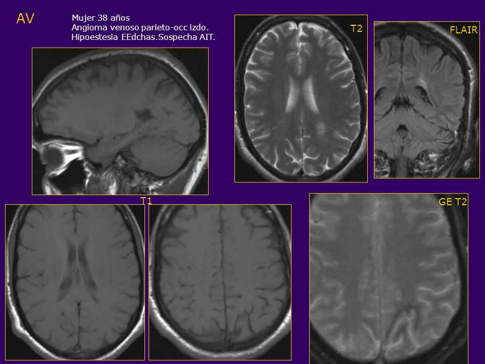 AV Mujer 38 años Angioma venoso parieto-occ izdo. Hipoestesia EEdchas.Sospecha AIT. FLAIR GE T2 T2 T1