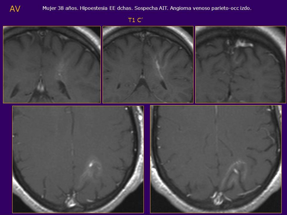 AV Mujer 38 años. Hipoestesia EE dchas. Sospecha AIT. Angioma venoso parieto-occ izdo. T1 C