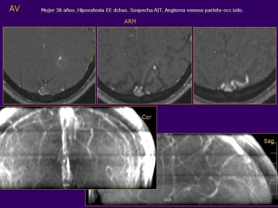 AV Mujer 38 años. Hipoestesia EE dchas. Sospecha AIT. Angioma venoso parieto-occ izdo. ARM Cor Sag
